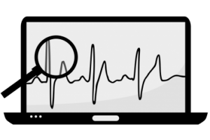 A computer screen showing a pulse monitor