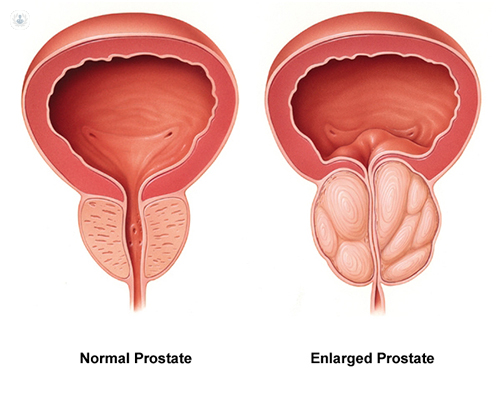 A diagram showing the difference between an enlarged prostate and a normal prostate
